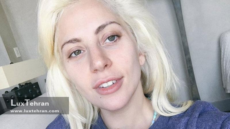لیدی گاگا بدون گریم بدون آرایش