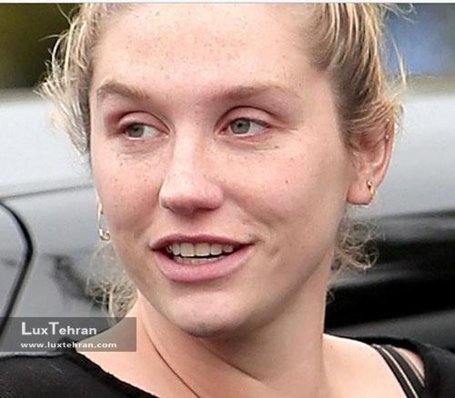 کِشا زیبایی صورت بدون آرایش