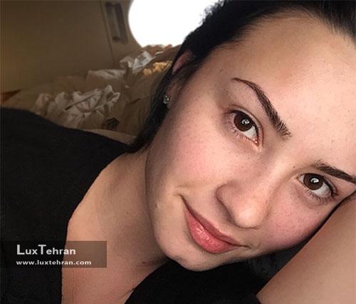چهره بدون آرایش زیبایی صورت دمی لواتو