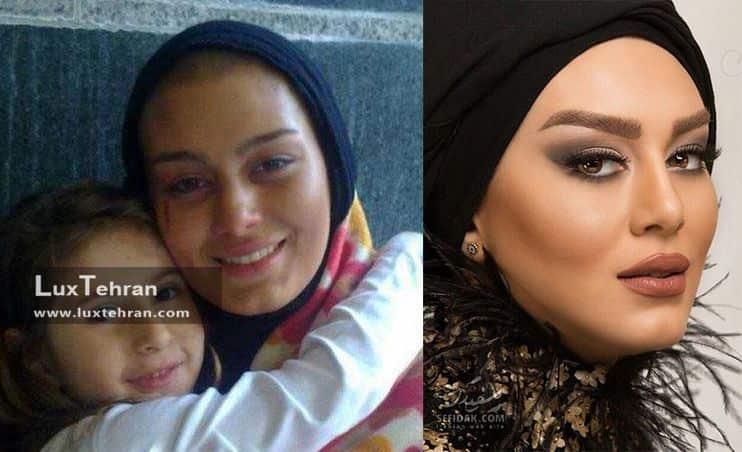 عکس بازیگران ترکیه ای بدون آرایش