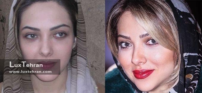 عکس صورت لیلا اوتادی هنرپیشه خوش سیمای ایرانی