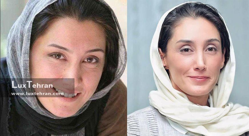 صورت مهربان و بدون آرایش هدیه تهرانی