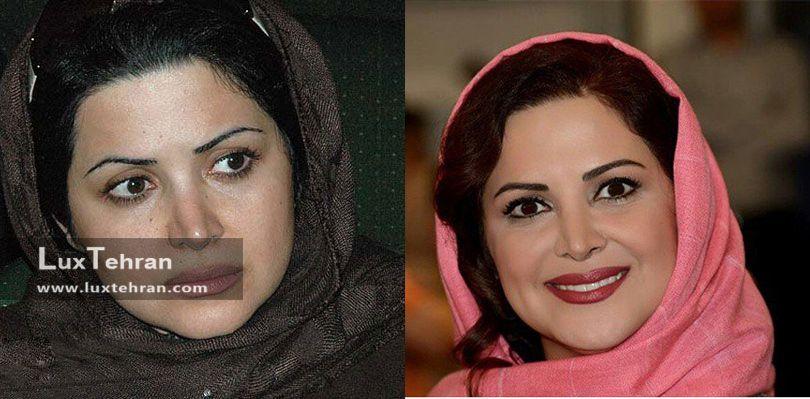 عکس بدون گریم بازیگر ایرانی ؛کمند امیر سلیمانی