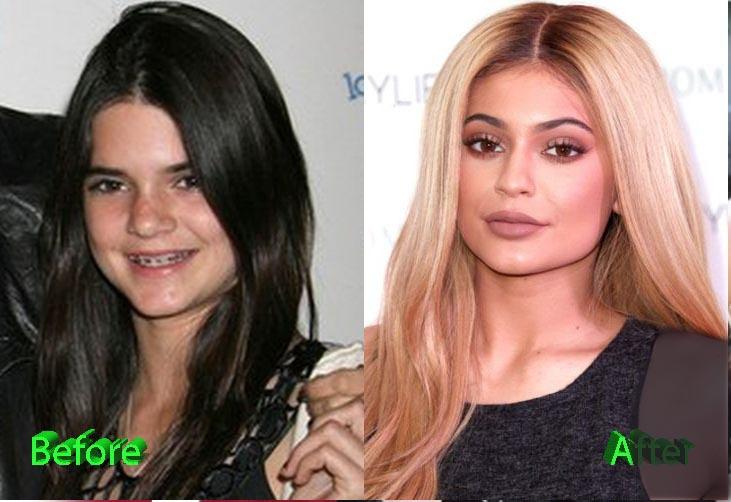 کایلی جنر قبل از عمل زیبایی