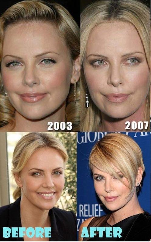 شارلیز ترون قبل و بعد از حمل جراحی پلاستیک