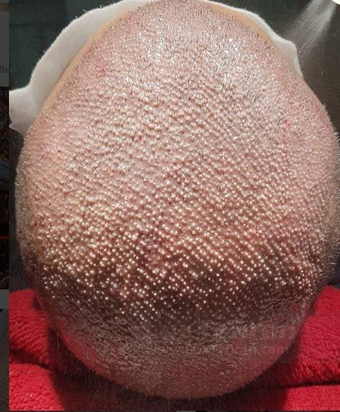 تراشیدن موی سر برای کاشت مو