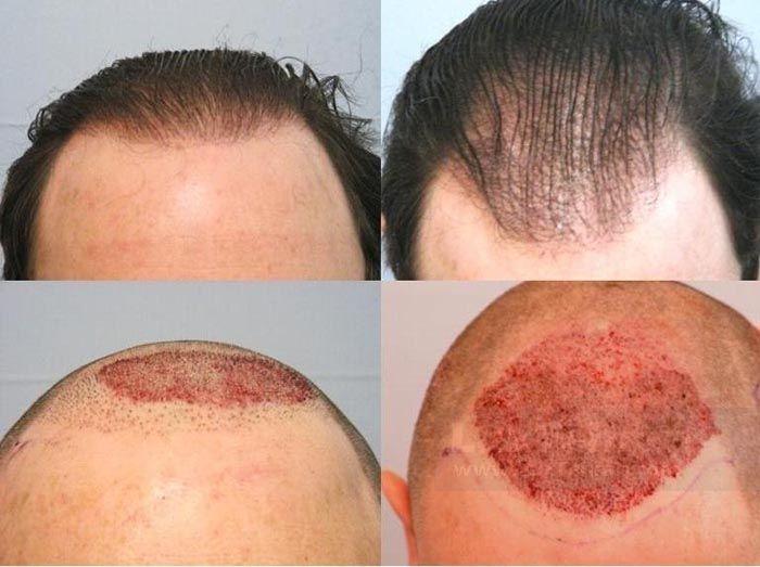 فرآیند کاشت مو چگونه است؟ در تصویر